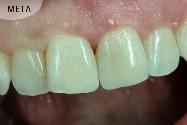 Επανορθωτική Οδοντιατρική - ΚΑΡΑΓΕΩΡΓΟΥ ΓΕΩΡΓΙΑ - ΟΔΟΝΤΙΑΤΡΟΣ ΛΑΜΙΑ db826ddd80f