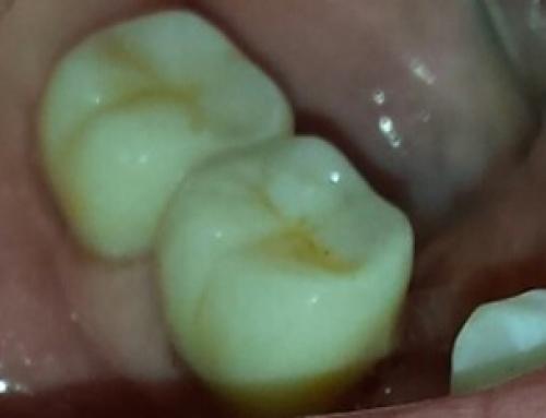 Επανορθωτική Οδοντιατρική: Ένθετα-Επένθετα