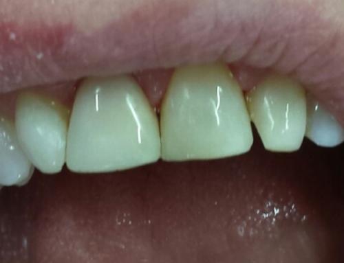 Αισθητική Οδοντιατρική: Εσωτερική λεύκανση και bonding