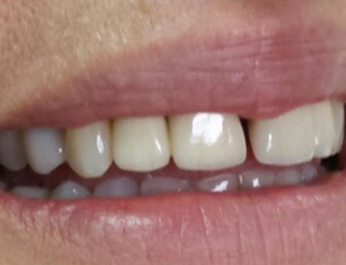 Επανορθωτικη οδοντιατρική-Στεφάνες ζιρκονίου