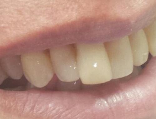 Αισθητική οδοντιατρική: Εμφράξεις συν ρητίνης, επένθετα και bonding
