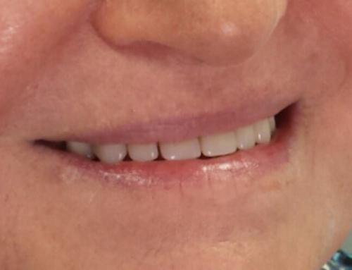 Αντικατάσταση Οδοντοστοιχίας